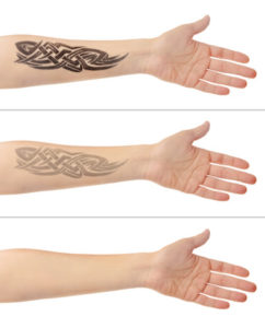 55688024 - tattoo on male hand. laser tattoo removal concept
