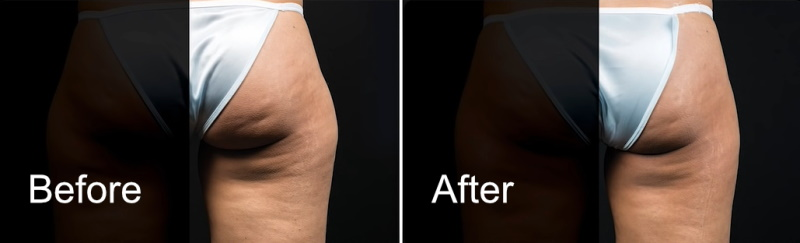 coolsculpting on the outer thigh before and after