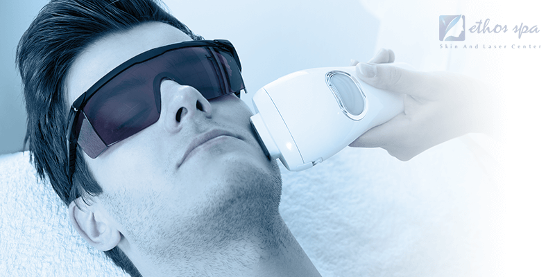 laser hair removal on the face for men
