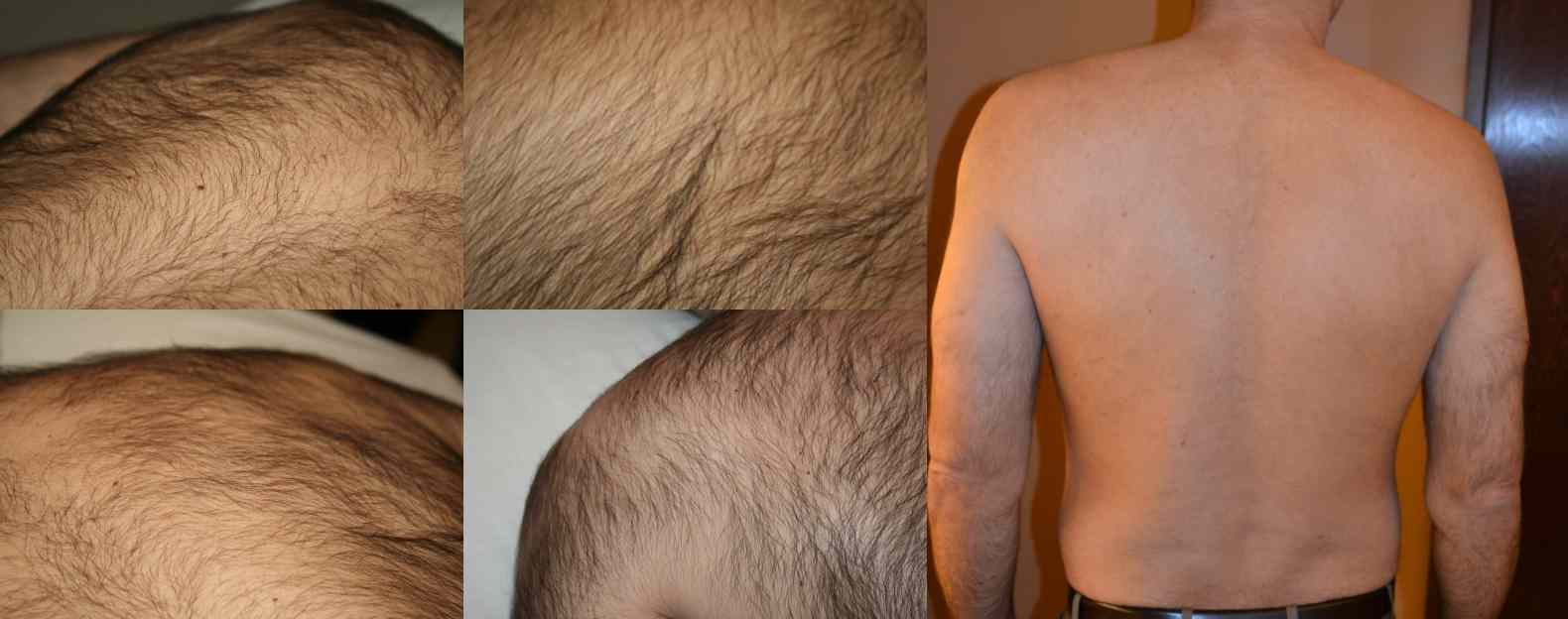 Laser Hair Removal For Men In New Jersey Ethos Spa Nj