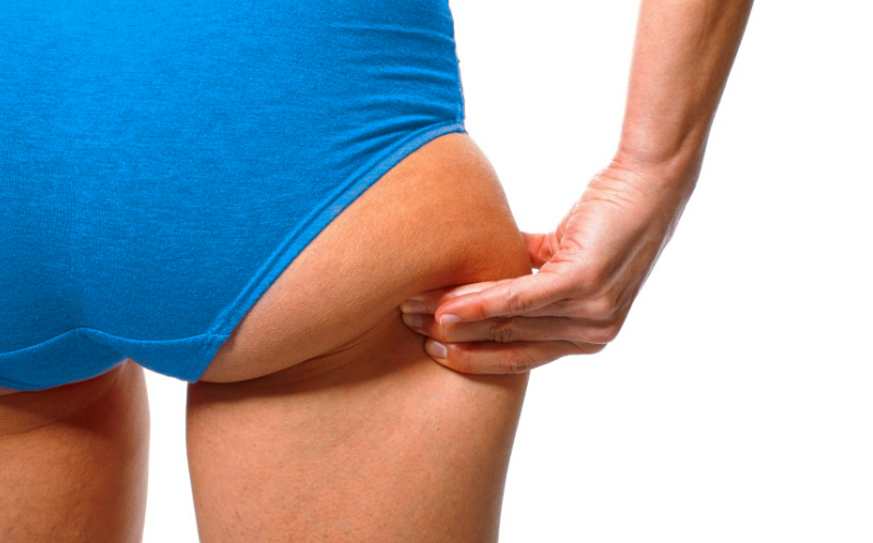 woman pinching her outer thigh fat