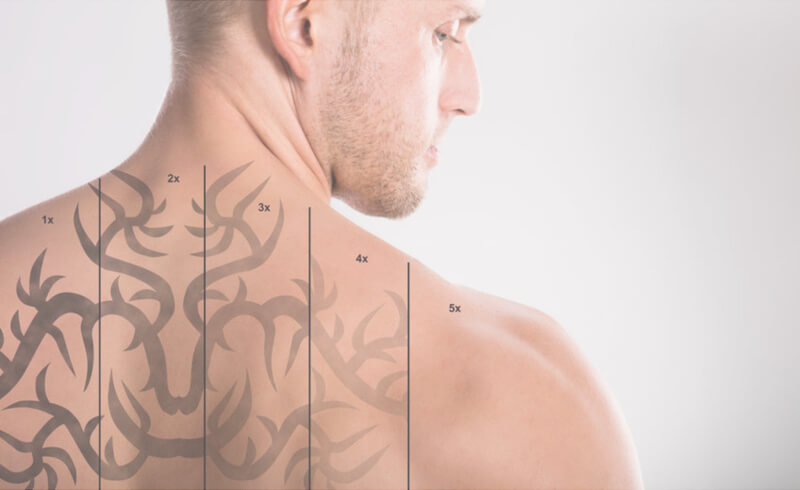 stages of tattoo removal on man's back